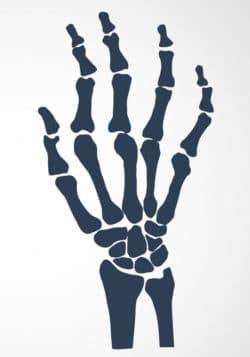 Rheumatoide Arthritis plötzlicher Gewichtsverlust